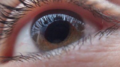 Photo of Близорукость увеличивает риск развития отслойки сетчатки