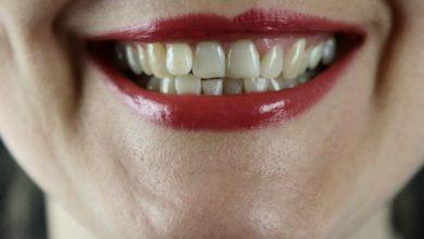 Photo of Отбеливаем зубы в домашних условиях
