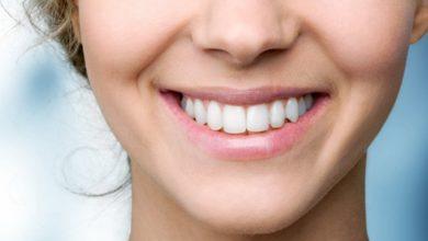 Photo of Новые зубы без обточки в клинике «Верастом»
