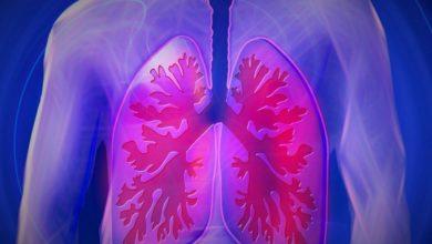 Photo of Рак легких: ученые выявили новые признаки смертельной болезни