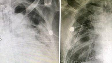 Photo of Пациенту с коронавирусом успешно пересадили легкие