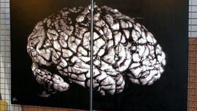 Photo of 10 лет с паразитом в мозге: техасец долго не понимал причину головных болей