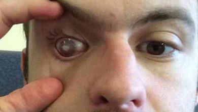 Photo of Житель Великобритании ослеп на один глаз после душа