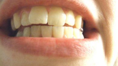 Photo of Зубы 2020-2021: как не скрежетать