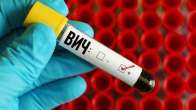 Photo of Новое открытие в понимании развития ВИЧ-инфекции сделали ученые