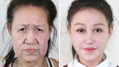 Photo of Раньше выглядела как старушка: девушка победила редкую генетическую болезнь