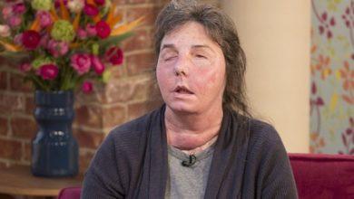 Photo of После нападения бывшего мужа женщине пересадили лицо, но оно стало «отслаиваться»