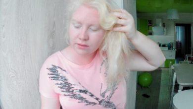 Photo of «Во мне нет меланина, но есть любовь к жизни»: блогер Анна Пшеничная рассказала о жизни альбиносов в России