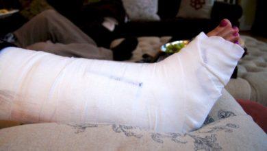 Photo of «Фильтр» для тромба: как после перелома могут страдать глубокие вены
