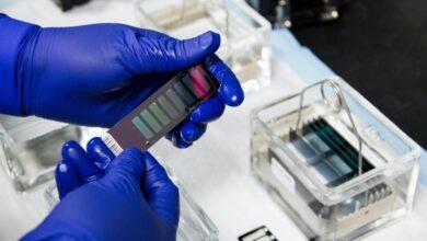 Photo of Ученые нашли связь между вирусными инфекциями, пневмониями и раком