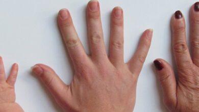 Photo of Укрепляем ногти с помощью йода и продуктов из кухонного шкафчика