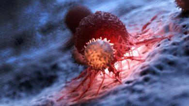 Photo of Как заподозрить рак поджелудочной железы и каков шанс излечиться: интервью с хирургом-онкологом