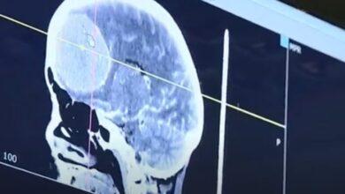 Photo of В Склифе провели уникальную операцию: опухоль поразила треть мозга