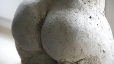 Photo of Почему появляется сыпь на ягодицах: 11 возможных причин