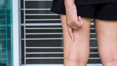 Photo of Вены на ногах изменили свой рисунок? Специалисты рассказали, когда пора идти к флебологу