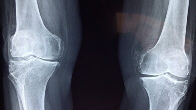 Photo of Почему болит сустав: главные отличия артроза от артрита
