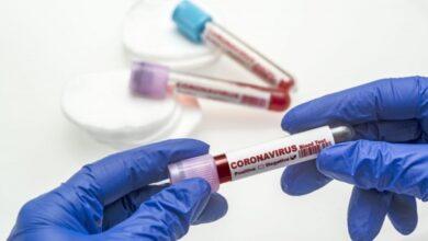 Photo of До 40% тестов на COVID-19 показывают ложный результат