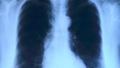Photo of Предполагаемый COVID-19 оказался другим редким и опасным заболеванием