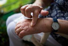 Photo of 7 самых распространенных аутоиммунных недугов: как их распознать